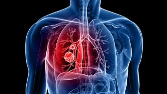 Lung cancer graphic