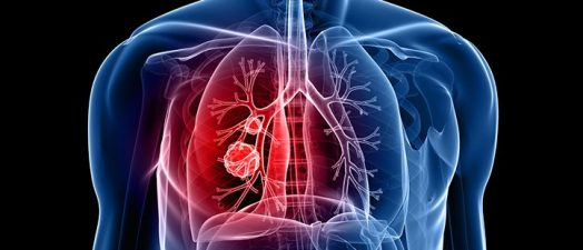 Featured Image for New clinical trial, treatments offer hope for lung cancer patients