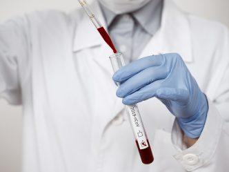Lab test vial