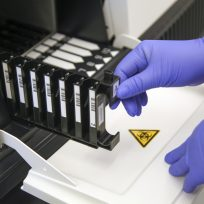 A person wearing gloves and conducting an antibody test.