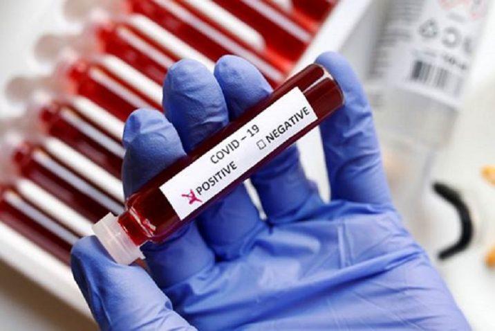 glove hand holding blood vial