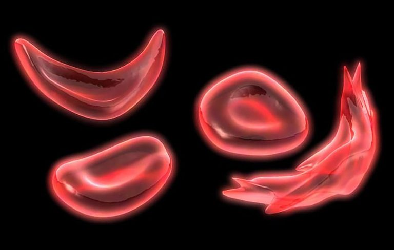 sickle cell image