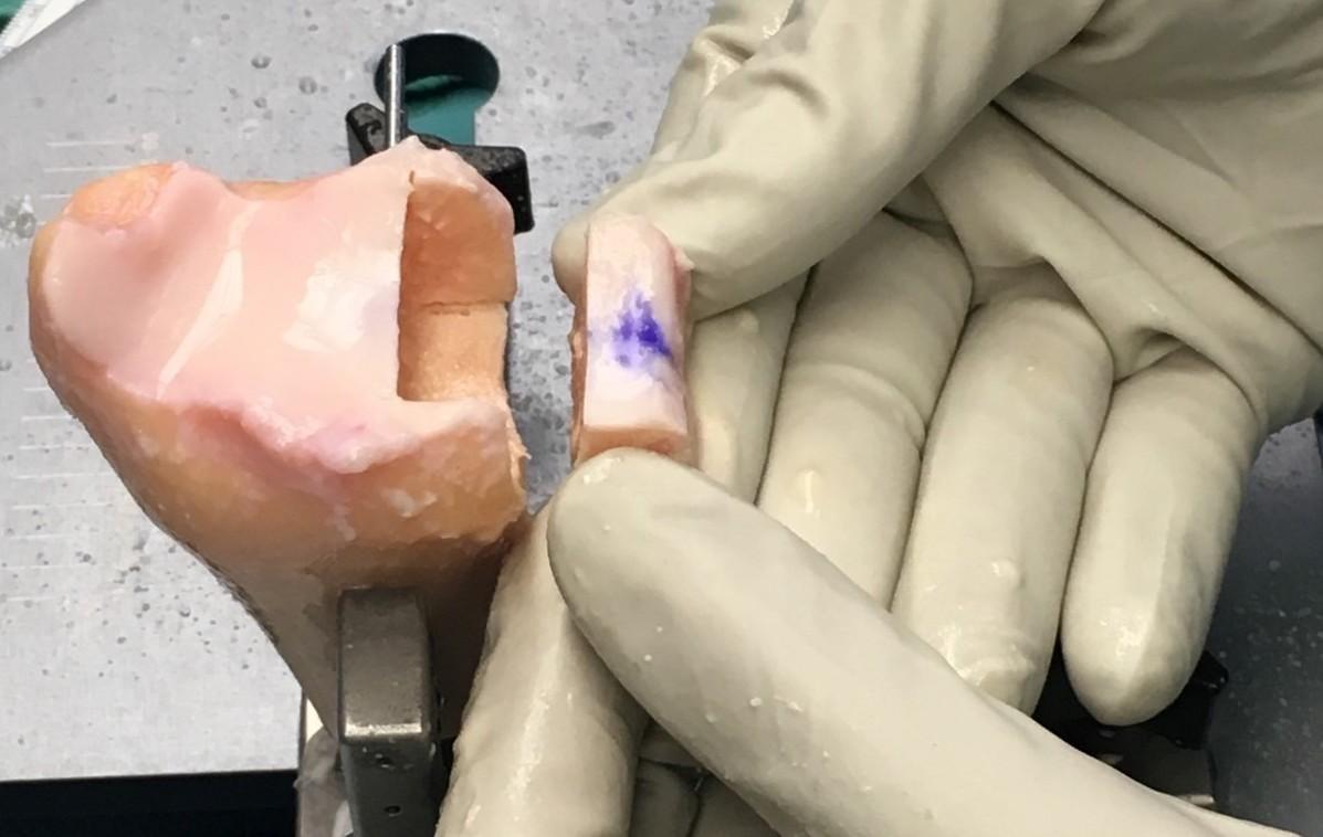 gloved hands holding piece of shoulder
