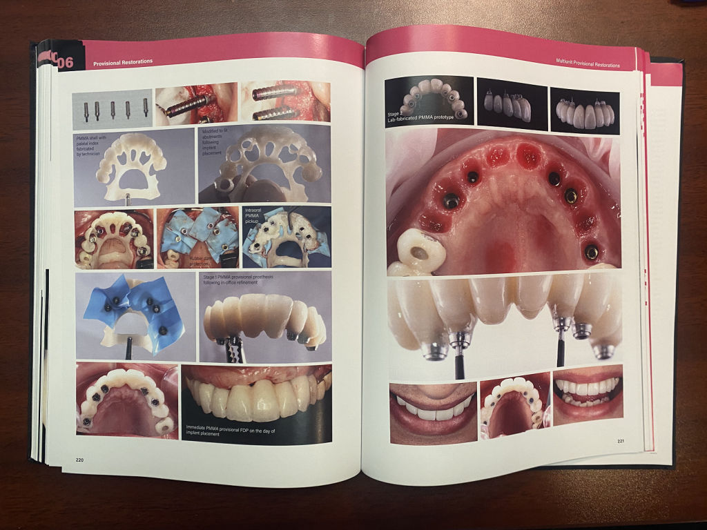 spread of a textbook